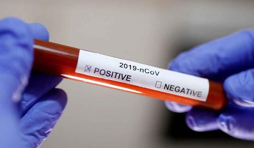 Mai putine teste ,mai putine cazuri!4207 cazuri noi de Covid-19, din 9938 de teste.Caras-Severin 37 de persoane  infectate cu COVID-19!Timis 136!